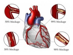 Triglycerides and Heart Disease